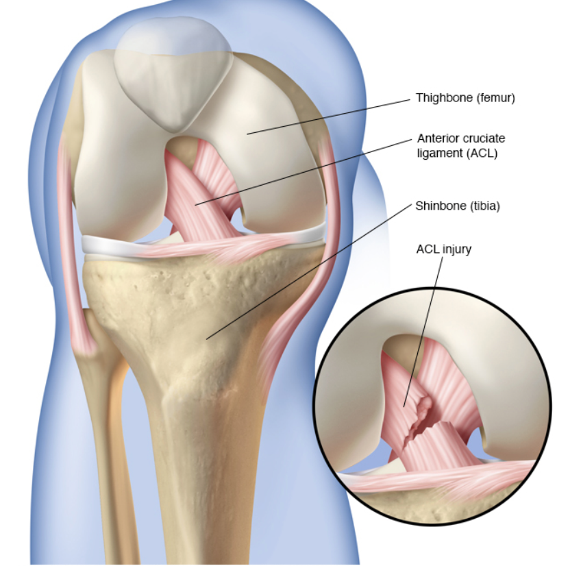 anterior cruciate ligament injury in football player Acl injuries are the most common major knee injury that occurs in football these injuries generally require surgery to allow the patient to return to sport however, there are cases where allograft maybe appropriate such as in multi ligament reconstruction because too many graft's are required to.